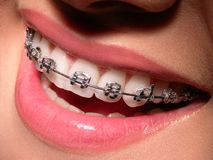 Correction. Smiling lips with correcting device on teeth Stock Photo