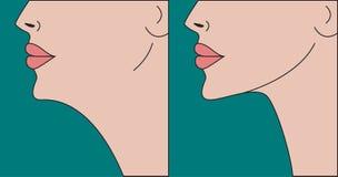 Correction de double menton illustration stock