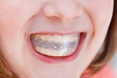 Correction de l'occlusion par l'entraîneur orthodontique Photographie stock