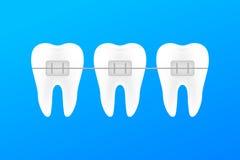 Correction des dents avec les accolades orthodontiques Étapes de l'alignement de dents Services dentaires de clinique Illustratio illustration de vecteur