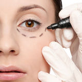Correction lines on woman face, before surgery Royalty Free Stock Photos