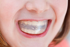Correction of occlusion by orthodontic trainer Stock Photography