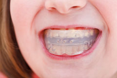 Correction of occlusion by orthodontic trainer Royalty Free Stock Images
