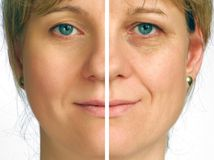 Correction of wrinkles - half of face. Correction of wrinkles on half of face royalty free stock image