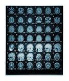 Corrediça real do cérebro MRI de uma jovem mulher Imagens de Stock