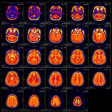Corrediça real do cérebro MRI de uma menina Foto de Stock