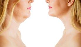 Correzione del grasso o della pagliolaia del doppio mento, prima e dopo immagini stock