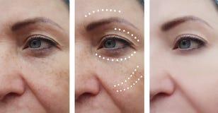 Correzione paziente delle grinze facciali femminili prima e dopo le procedure del collage di effetto fotografie stock libere da diritti