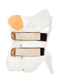 Corset Chenot. Correction device for the treatment of scoliosis Stock Photography