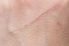 Corte do gato na pele humana fotografia de stock royalty free