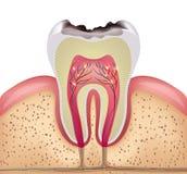 Corte transversal del diente con la carie dental libre illustration