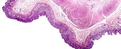 Corte transversal del estómago fotos de archivo libres de regalías