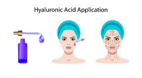 Cosmetic application of hyaluronic acid. Vector Stock Image