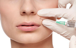Cosmetic botox injection in the beauty face. Cosmetic botox injection in the female face. Lips zone, Isolated Stock Photos