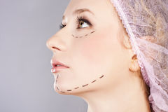 Cosmetic botox injection, in the female face Stock Photo