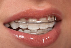 Cosmetic Braces Royalty Free Stock Photography
