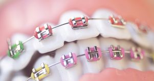 Cosmetic dental metal brackets Stock Images