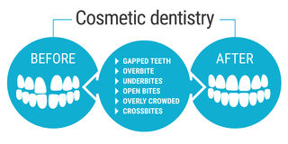 Cosmetic dentistry before after. Medical infografics: Dental services. Cosmetic dentist before and after. Dental design over white background vector illustration Stock Photography