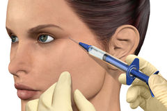 Cosmetic Injection. 3D illustration of a botox injection Stock Image