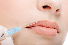 Cosmetic injection in the female lips Royalty Free Stock Image