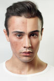 Before and after cosmetic operation. Young pretty man portrait Stock Photography