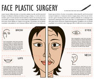 Cosmetic plastic facial surgery poster Royalty Free Stock Photography