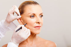 Cosmetic surgeon drawing Royalty Free Stock Image