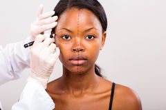 Cosmetic surgeon lines Royalty Free Stock Image