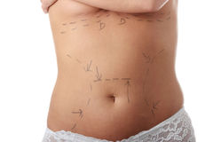 Cosmetic surgery Stock Images