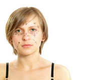 Cosmetic surgery patient Royalty Free Stock Image