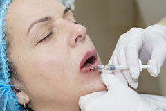 Cosmetic surgery Royalty Free Stock Image
