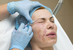 Cosmetic surgery Stock Image