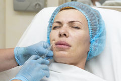 Cosmetic surgery Stock Photos