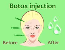 Cosmetic surgery vector illustration. Botox injection. women facial wrinkle treatment. Stock Photography