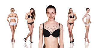 Cosmetic surgery. Woman breast marked out for cosmetic surgery Stock Images