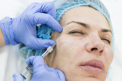 Cosmetic treatment with injection Royalty Free Stock Photo