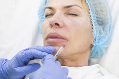 Cosmetic treatment with injection Royalty Free Stock Photography