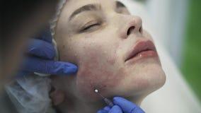 Cosmetican que introduz a agulha no mordente da mulher s e que remove a video estoque