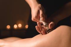Cosmetología del hardware del primer Procedimiento del masaje del vacío Las manos masculinas instalan los bancos del vacío Primer fotos de archivo libres de regalías