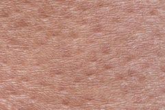 Cosmetological ha strutturato il fondo da pelle sana rosa del primo piano di secolo della fronte del corpo, coperta di goosebumps fotografia stock libera da diritti