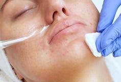 Cosmetologist делает терапию Microcurrent процедуры лицевой кожи красивого, молодой женщины в салоне красоты стоковое фото rf