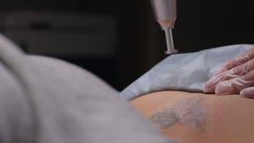 Cosmetologist avec le patient et le laser professionnel de retrait de tatouage dans le salon banque de vidéos