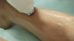 Cosmetologist doet de verwijdering van het laserhaar op benen van patiënt Epilationprocedure stock videobeelden
