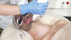 Cosmetologist doing facial carbon peeling for male client. Man wearing protective glasses during carbon peeling procedure at skincare clinic. Laser technology stock video
