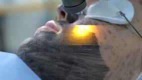 Portrait of woman on laser carbon face peeling procedure in beauty clinic.