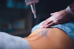 Cosmetologist met de geduldige en professionele laser van de tatoegeringsverwijdering in salon royalty-vrije stock afbeeldingen