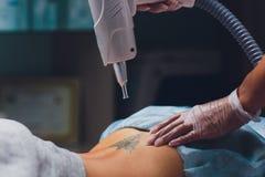 Cosmetologist met de geduldige en professionele laser van de tatoegeringsverwijdering in salon stock foto