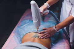 Cosmetologist with patient and professional tattoo removal laser in salon. Cosmetologist with patient and professional tattoo removal laser in salon royalty free stock photo