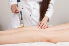 Cosmetologist som gör laser-epilation på kalven och låren för flicka` s Arkivbild