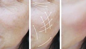 Cosmetology αποτελεσμάτων ρυτίδων γυναικών του προσώπου υλικό πληρώσεως πριν και μετά από τις διαδικασίες στοκ φωτογραφίες